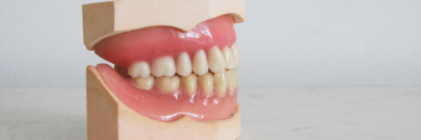 Image is a dentists model of teeth and gums.